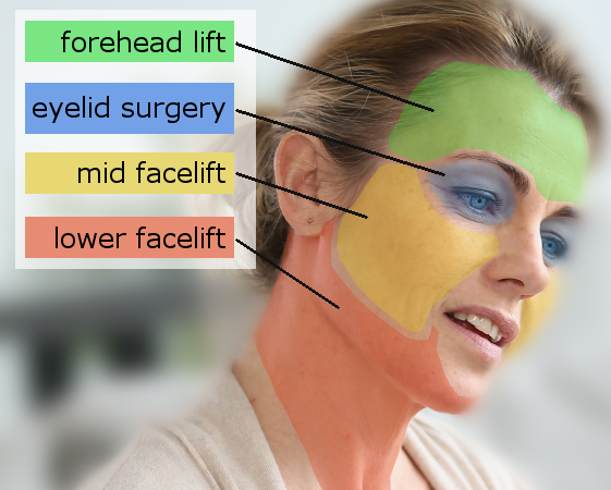 Types_of_Facelift