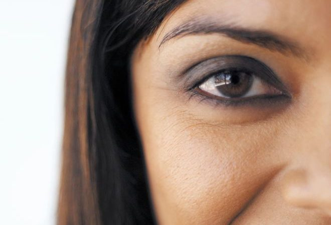 Eye bag removal treatment
