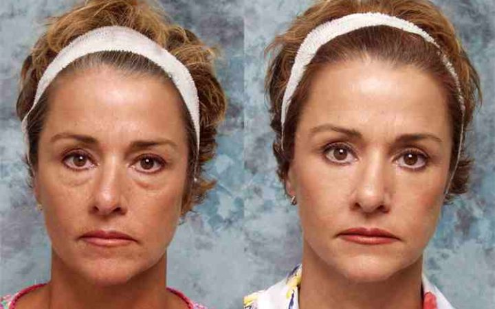 ptosis-treatment-surgery