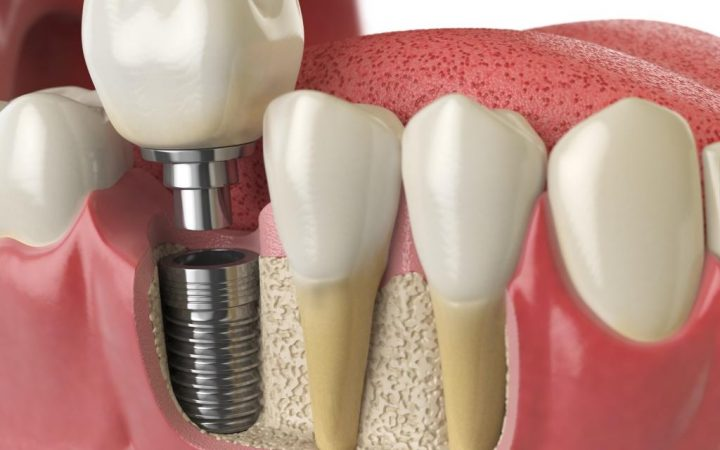 dental implant close look
