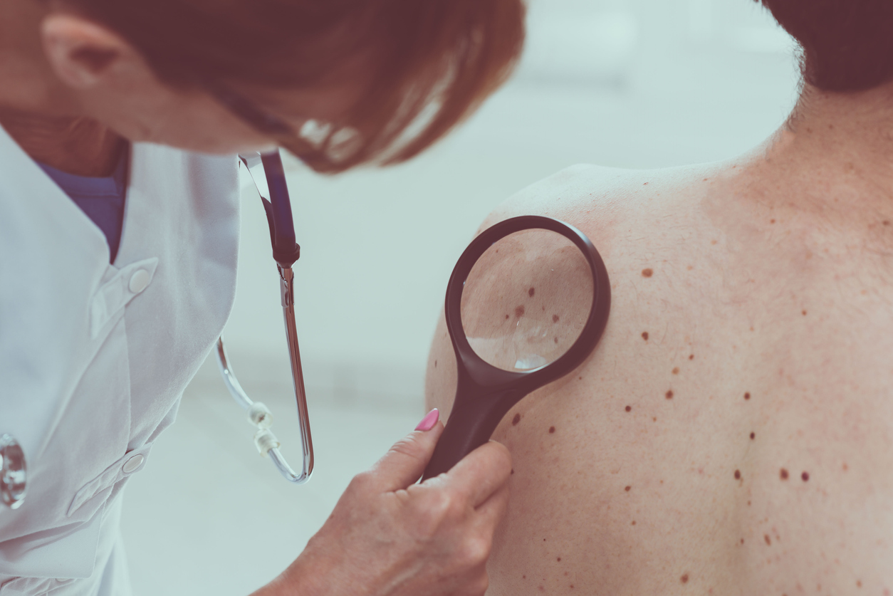 Dermatologist examining the skin of a patient with many moles