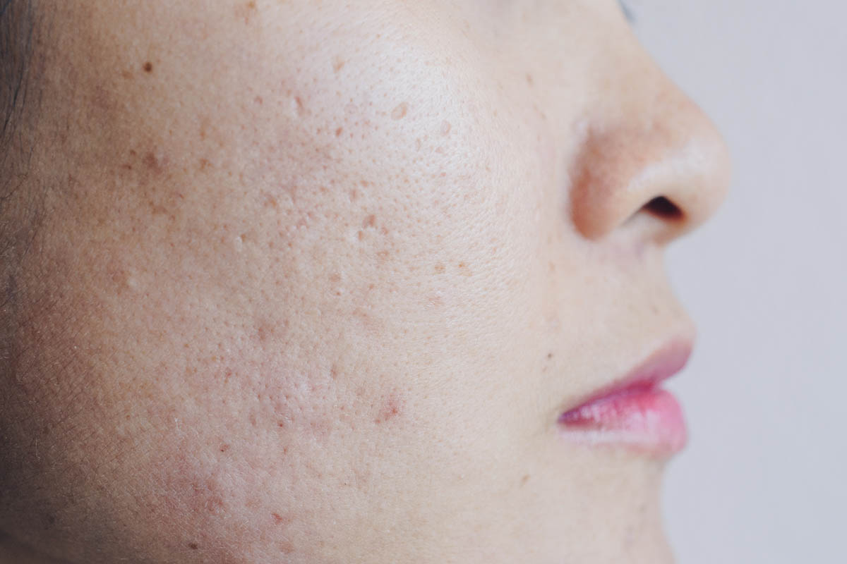Woman face with large pores